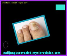 Effective toenail fungus cure - Nail Fungus Remedy. You have nothing to lose! Visit Site Now