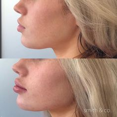 Lower Face Contour Danielle Smith NP injected multiple syringes to create jawlin… - Top Aesthetic Dermatology Trends 2020 Cheek Fillers, Botox Fillers, Nose Plastic Surgery, Chin Filler, Danielle Smith, Lip Injections, Lip Plumper, Nasolabial Folds, Lip Augmentation