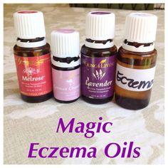 Eczema Oils