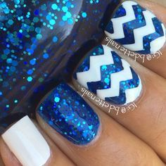 Here we can see blue glitter nail with white acrylic zigzag.