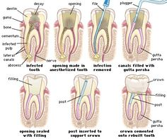 Endodontic therapy or root canal therapy is a sequence of treatment for the infected pulp of a tooth which results in the elimination of infection and the protection of the decontaminated tooth from future microbial invasion.