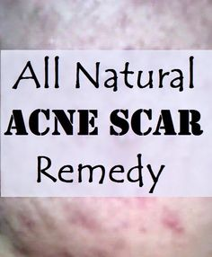 DIY Essential Oil Blend for Acne Scars: Heal Acne scars naturally and quickly.