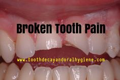 broken tooth pain, broken tooth pain remedy, Dental Care, Oral hygiene