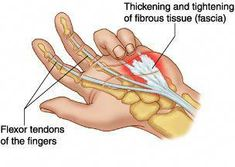 Dupuytren contracture is a slow progressive contracture of the palmar fascia causing flexion of the fourth and fifth fingers; Signs Of Arthritis, Rheumatoid Arthritis Treatment, Arthritis Pain Relief, Human Body Anatomy, Human Anatomy And Physiology, Gout Flare Up, Dupuytren's Contracture, Hand Surgery, Gout Remedies