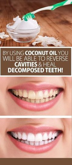 Using Coconut Oil You Will Be Able To Reverse Cavities And Heal Decomposed Teeth! - Best Health PageBy Using Coconut Oil You Will Be Able To Reverse Cavities And Heal Decomposed Teeth! - Best Health Page Coconut Oil For Teeth, Coconut Oil Pulling, Coconut Oil Uses, Coconut Hair, Reverse Cavities, Remedies For Tooth Ache, Heal Cavities, Receding Gums, Oral Health