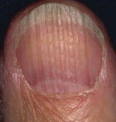 Saviez-vous que vos ongles peuvent fournir des indices sur votre état de santé général? Des ongles normaux, en bonne santé devraient avoir un aspect lisse et une coloration uniforme, mais en prenant de l'âge, vous pouvez développer des stries verticales, ou bien vos ongles peuvent devenir un peu plus fragiles. C'est sans danger et rien …
