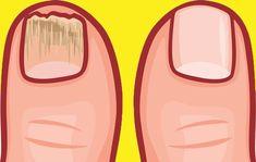 Sonsuza Dek Tırnak Mantarından Kurtulun 2 Malzemeli Tarif Bob Ross, Health Fitness, Abs, Workout, Beauty, Men Dress Shoes, Lilac, Foot Care, Masks