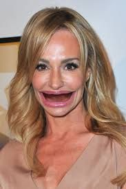 Celebrities Without Teeth Frightening Yet Hilarious Funny - Celebrities without teeth
