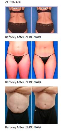 """ZERONA® is a new, non-invasive body sculpting procedure designed to remove fat and contour the body parts that tend to be difficult to target with regular diet and exercise - without invasive surgery. In about two weeks, slim down approximately 3""""- 5"""", PLUS, there are NO side effects, NO pain and NO down time - simply lie down, relax and let the laser do all the work!  ZERONA® is the only laser that the FDA did not label as temporary."""