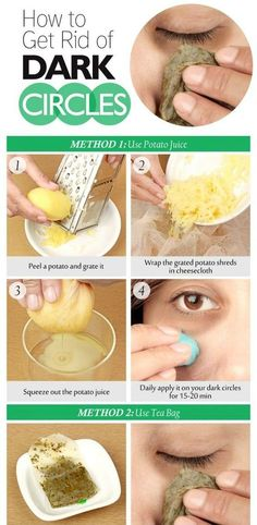 DIY How to Get Rid of DARK CIRCLES under eyes
