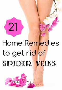 21 Home Remedies to Get Rid of Spider Veins  #wellness #homeremedies #spiderveins #health