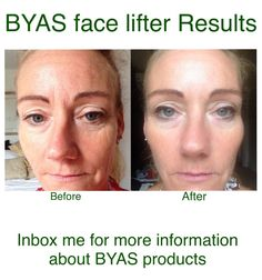 Great results using the BYAS face lifter, contact me today for more information at www.facebook.com/byasnotts