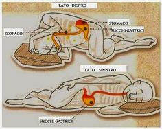 According to Ancient Ayurveda, for many people, sleeping on the left side may be the ticket to better health and also better sleep. How Sleeping on Your Left Side Affects Your Health Insomnia Remedies, Sleep Remedies, Health And Wellness, Health And Beauty, Health Fitness, Gut Health, Ayurveda, Lunge, Sleep Apnea