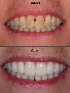The Restorative Benefits Of Cosmetic Dental Services