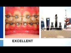 How To Brush Your Teeth With Braces - Crest + Oral-B Ortho Essentials