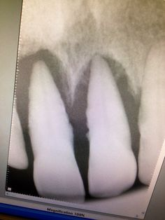 This is periodontal disease. Bone loss and calculus on roots. Dental Assistant Humor, Dental Hygiene Student, Dentist Humor, Dental Hygienist, Dental World, Dental Life, Oral Health, Dental Health, Ocd