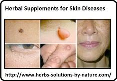 Herbal Supplements for Skin Diseases