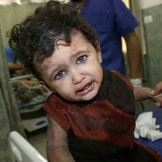 Look at this gorgeous little face ! NO KID from GAZA should suffer like that !