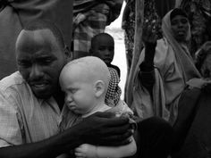 At Dollo Ado reception a man and child. The boy's eyes and skin are sensitive to sun. Love/hardship in father's gaze.  Photo by Greg Beals