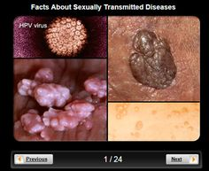 Pictures sexual transmitted diseases
