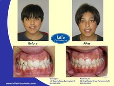 Nikki Orthodontics, Portsmouth, King Charles, Photos, Pictures, Cake Smash Pictures