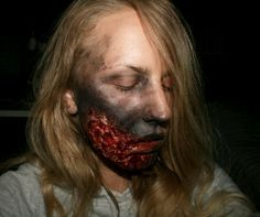 Face burned
