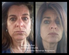 My personal success story with RODAN+FIELDS   2 1/2 months with using Reverse.  Message me if you would like to hear how you can have your own success story!! This product is life changing in so many  areas from choosing the biz or just the products.  Success in all areas with RODAN+FIELDS