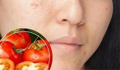 6 Naturprodukte gegen Gesichtsflecken