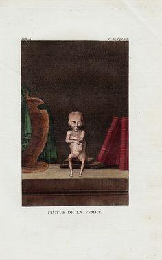 1804 Rare Antique bizarre WOMAN FETUS by TwoCatsAntiquePrints