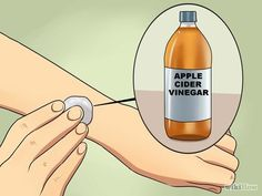 Treating Ringworm, Get Rid Of Ringworm, Home Remedies For Ringworm, Cough Remedies, Ring Worm Remedies, Ring Worm Treatment, Eczema Causes, Natural Acne Treatment, Medicine Book