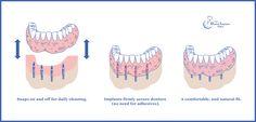 Visit thedentalimplantplace.com to find out how dental implants work!
