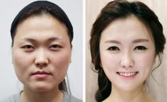 South Korea- the home of extreme plastic surgery.