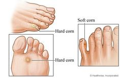 Home Remedies For Corns  •An effective to cure corn would be to use lemon. Slice the lemon and place them over the corn, overnight. In the morning, remove it and wash the infected area with a disinfectant.•Prepare a juice from raw papaya. Take ½ tsp of this juice and apply it over the hard area, three times a day. This will prove to be helpful in treating corns.