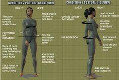 condition2 posture imbalances - Egoscue - Oregon Exercise Therapy