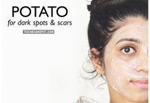 BEAUTY DIY: POTATO FOR DARK SPOTS AND ACNE SCARS