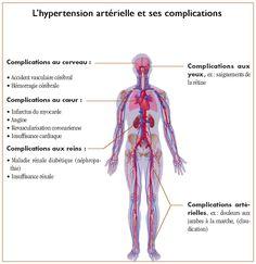 Les complications de l'hypertension artérielle