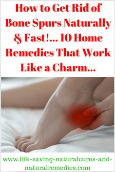 How to Get Rid of Bone Spurs Naturally & Fast!... 10 Home Remedies That Work Like a Charm...