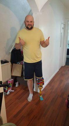 Homem cria própria prótese usando Lego