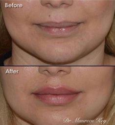 A Lip Lift can decrease the relative vertical length of the cutaneous lip which . - health and beauty Botox Fillers, Dermal Fillers, Lip Fillers, Juviderm Lips, Botox Lips, Lip Augmentation, Cosmetic Treatments, Lip Shapes, Lip Injections