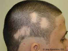 Alopecia Treatment, Diagnosis, Causes Of Alopecia, Symptoms