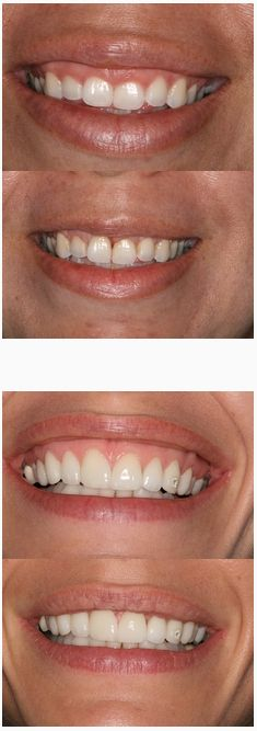 Gummy Smiles like this can be easily treated with small injections of Botox. Ask your doctor at Dental Day Spa about it at your next appointment!