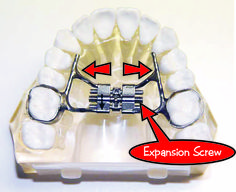 Dr buddy and the rapid palatal expander rpe part 1 dr buddy and the rapid palatal expander rpe part 1 educational videos and pictures pinterest dental dental health and braces mozeypictures Gallery