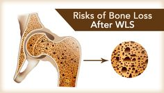 If you've had WLS, it is important to protect your bone health. Due to the nature of some procedures, bone health can be impacted. Read about bone health!