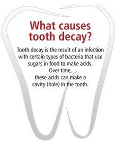 What causes tooth decay? Tooth decay is the result of an infection with certain types of bacteria that use sugars in foods to make acids. Over time, these acids can make a cavity (hole) in the tooth.