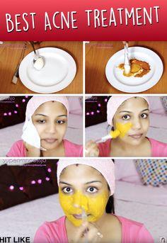 Do It Yourself Gesichtsmaske gegen Akne