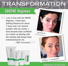Transformation Tuesday!   Soothe is perfect for redness, eczema, roseca, and puffiness. Message me for more details!  #rflove