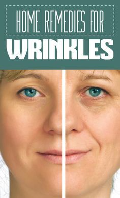 16 Natural Home Remedies for Wrinkles Under Eyes