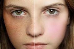 Sự hình thành mạnh mẽ của các sắc tố melamin gây ra tàn nhang khiến các vết sẫm màu xuất hiện trên da.