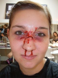 1000 Images About Broken Nose On Pinterest First Aid