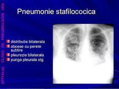 Imagini pentru radiografie cu pneumonie stafilococica